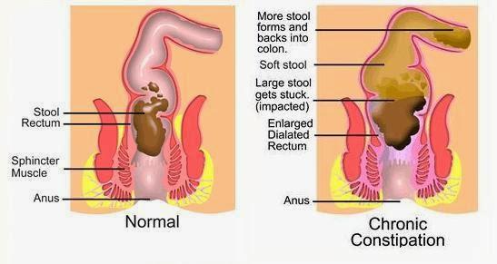 Image result for sembelit ketika hamil