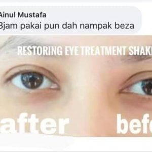 krim mata untuk mata lebam, dark circle, eye bag (3)